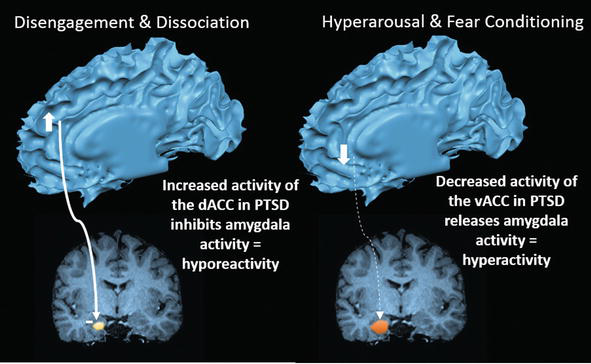 revisiting the role of the amygdala in posttraumatic stress disorder
