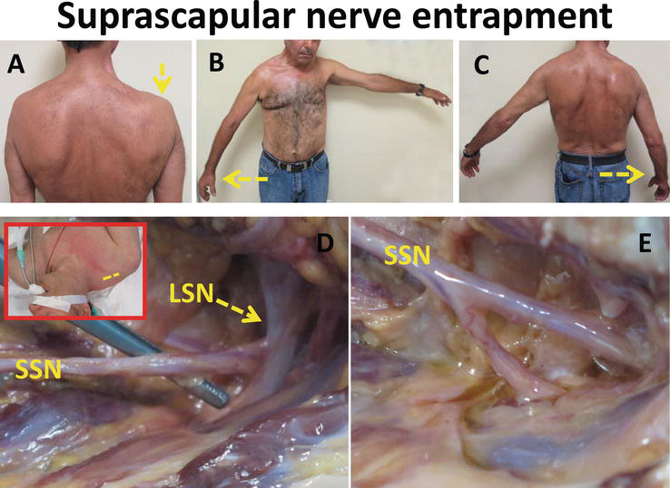 Peripheral Nerve Entrapment and their Surgical Treatment | IntechOpen