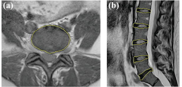 OncoSpineSeg: A Software Tool for a Manual Segmentation of Computed