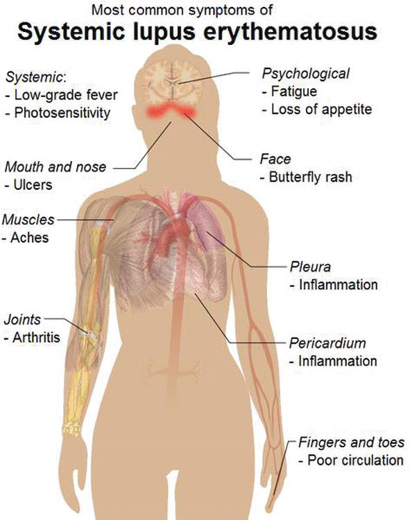 Introduction And Physiology Of Lupus Intechopen