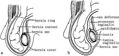 Inguinal Ring Hernia