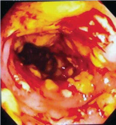 Clostridium Difficile In The Icu Intechopen