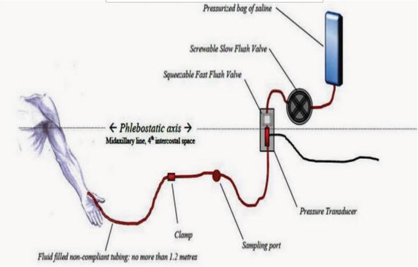 Haemodynamic Monitoring in the Intensive Care Unit | IntechOpen