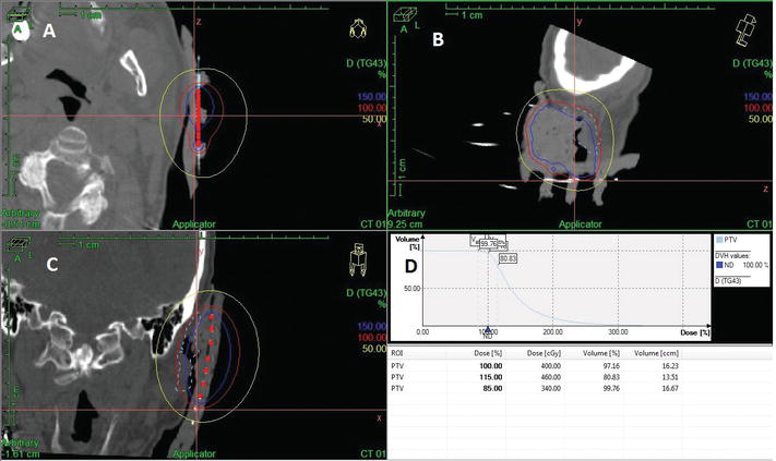 Treatment Planning in Brachytherapy HDR Based on Three‐Dimensional