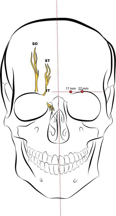 Anatomy Applied To Block Anesthesia For Maxillofacial Surgery