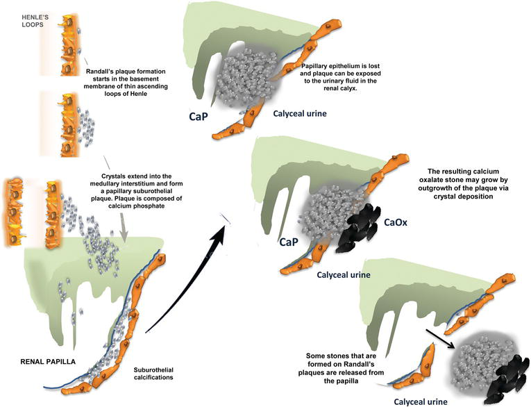 Understanding the Pathophysiology of Nephrocalcinosis
