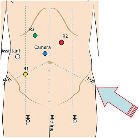 Robotic Splenic Flexure And Transverse Colon Resections Intechopen