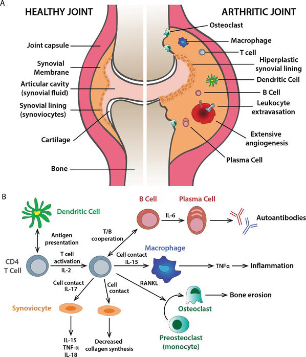 Physiology And Pathology Of Autoimmune Diseases Role Of