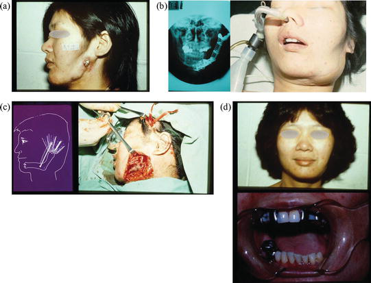 Reconstruction for Mandibular Implant Failure | IntechOpen