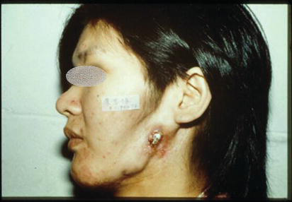 Reconstruction for Mandibular Implant Failure   IntechOpen