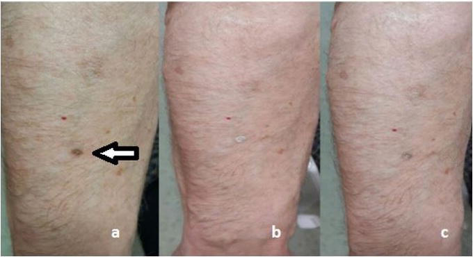 Cryotherapy For Common Premalignant And Malignant Skin Disorders Intechopen