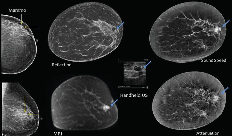 Development of ultrasound tomography for breast imaging