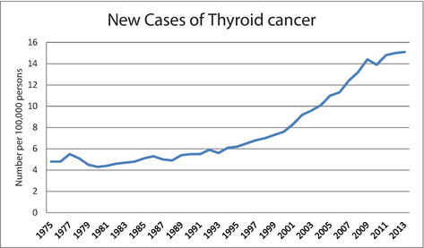 Thyroid Cancers Considerations Classifications And Managements