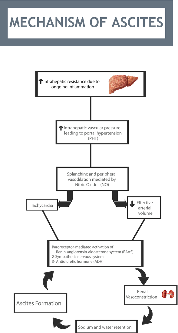 Cirrhotic Ascites  Pathophysiological Changes and Clinical