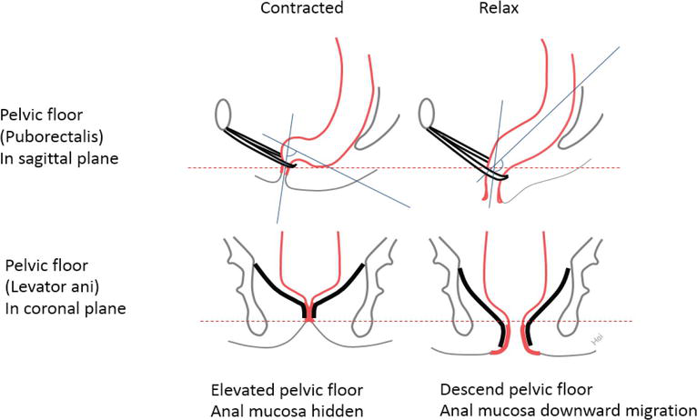 Pelvic Floor Support | IntechOpen