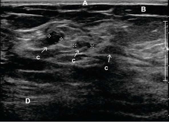 Breast Ultrasound Past Present And Future Intechopen