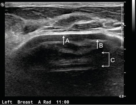 Breast Ultrasound Past, Present, and Future   IntechOpen