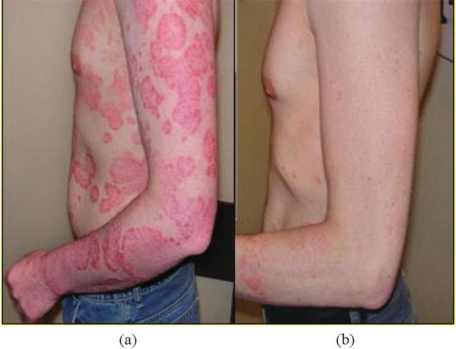 Application Of Cryogenic Methods In Skin Diseases Of Different