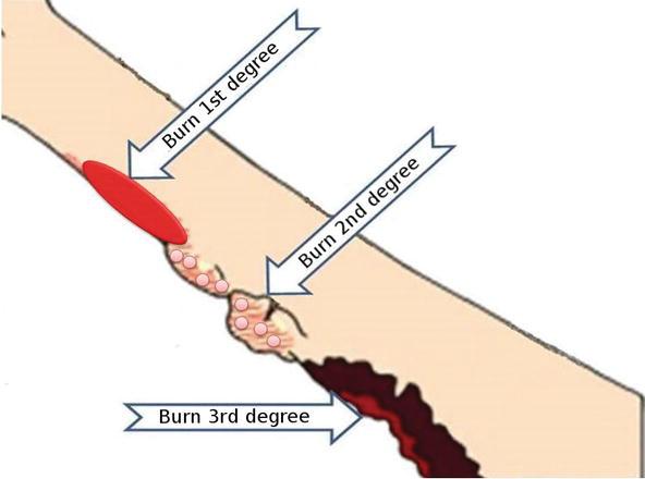 Burn Etiology and Pathogenesis | IntechOpen