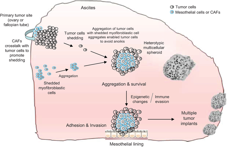 Ascites In Ovarian Cancer Progression Opportunities For Biomarker Discovery And New Avenues For Targeted Therapies Intechopen