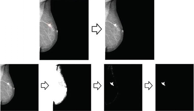 Breast Cancer Detection By Means Of Artificial Neural Networks