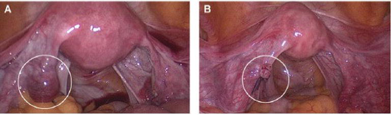 Ectopic Pregnancy Diagnosis Prevention And Management Intechopen