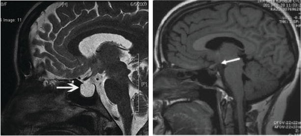 Management of Intracranial Pressure in Traumatic Brain