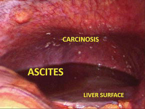 Ascites In Advanced Ovarian Cancer Intechopen