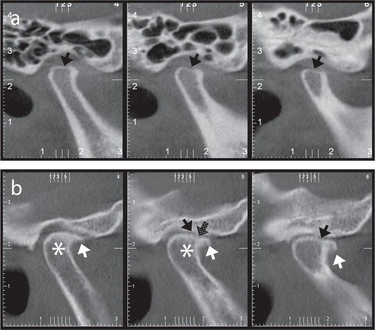 Osteoarthritis Of The Temporomandibular Joint Clinical And