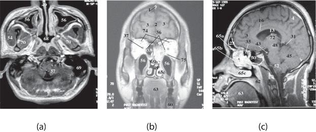 Advanced Brain Tumour Segmentation from MRI Images | IntechOpen