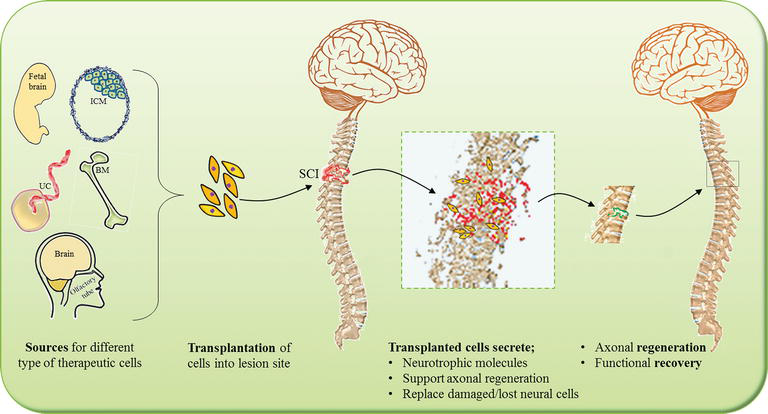 Cellular Transplantation-Based Therapeutic Strategies for