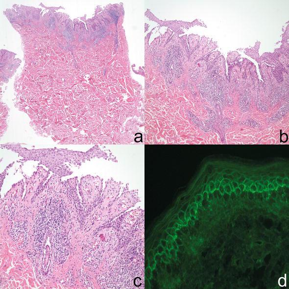 Histomorphologic and Direct Immunofluorescence Findings of