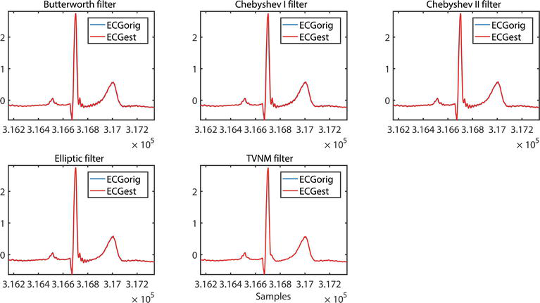 Cancelling Harmonic Power Line Interference in Biopotentials