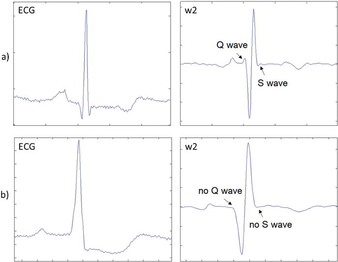 An Algorithm Based on the Continuous Wavelet Transform with