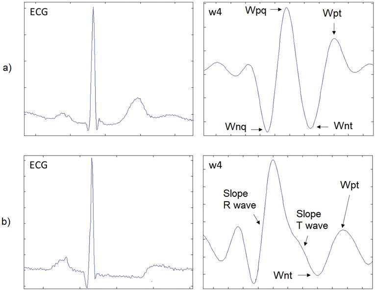 An Algorithm Based on the Continuous Wavelet Transform with Splines