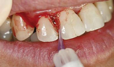 Ozone in Dentistry | IntechOpen
