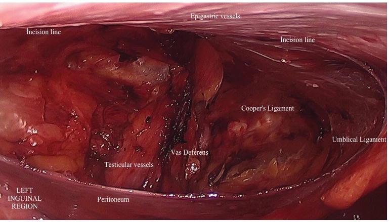 Laparoscopic Inguinal Hernia Repair: Technical Details