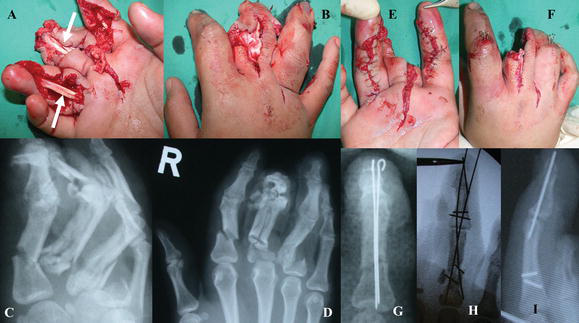 Crush Injuries of the Hand Part I: History, Mechanism and