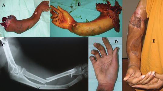 Crush Injuries Of The Hand Part I History Mechanism And