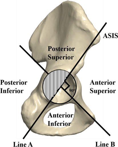Vascular Injury in Total Hip Replacement: Management and