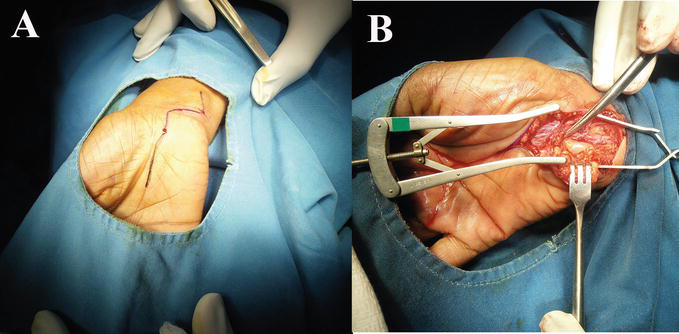 Starting A Peripheral Nerve Surgery Unit in an Area of