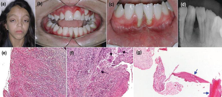 Periodontal Diseases in Patients with Special Health Care Needs