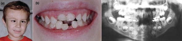 Periodontal Diseases in Patients with Special Health Care