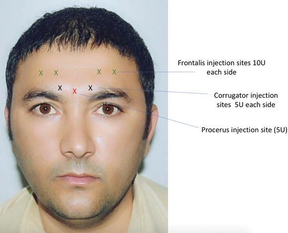 Botox Back Diagrams