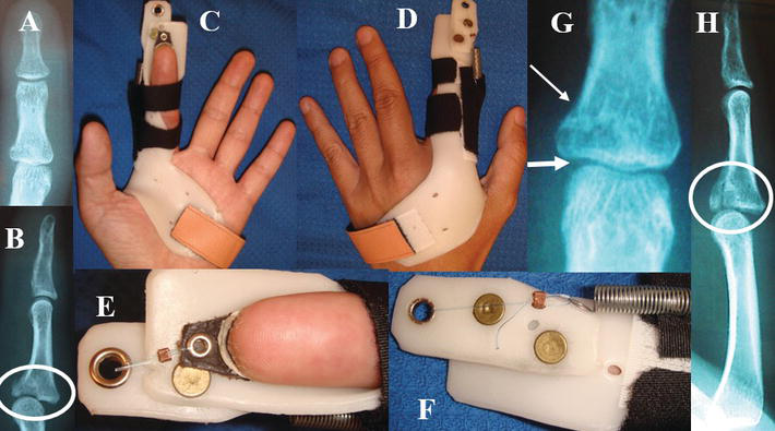 Crush Injuries of the Hand Part II: Clinical Assessment