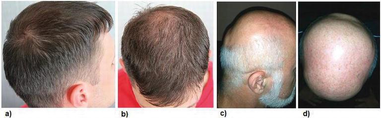 Evaluation of Patients with Alopecia   IntechOpen