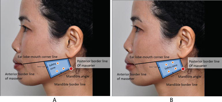 Masseter Hypertrophy: Toxin Treatment Techniques, Causes of