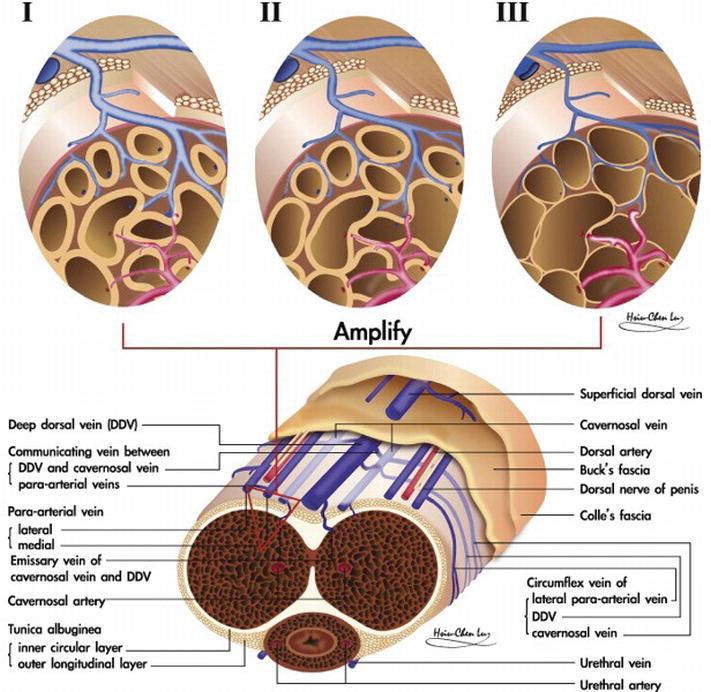 Preventing Erectile Dysfunction After Radical Prostatectomy Nerve