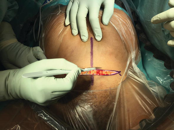 The Surgical Technique of Caesarean Section: What is