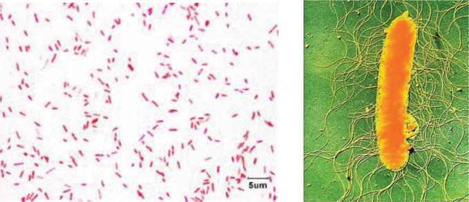 Microbiology of Catheter Associated Urinary Tract Infection